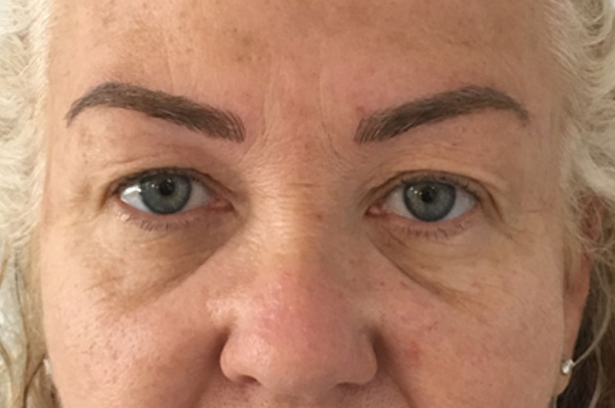 permanent makeup after microblading treatment
