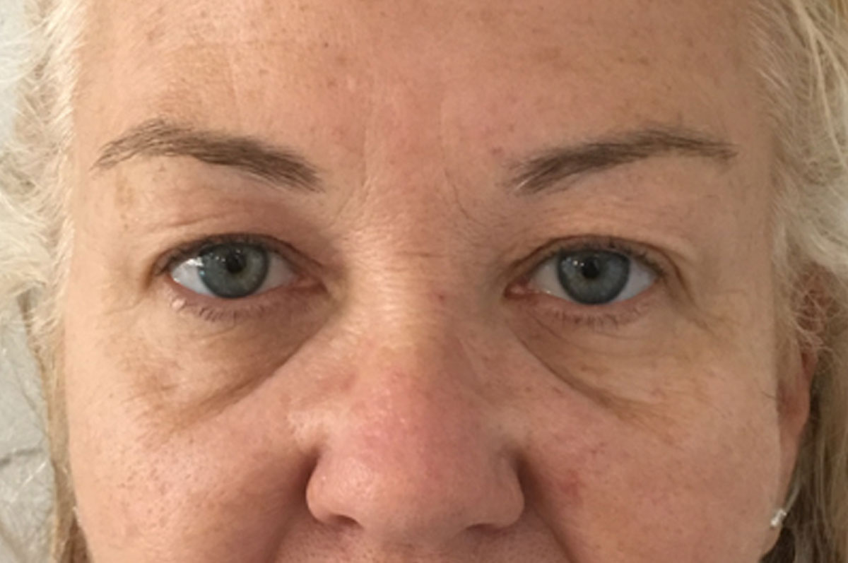 permanent makeup before microblading treatment